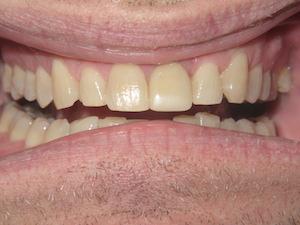 Des Plaines Dentist
