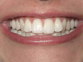Dentist in Des Plaines IL
